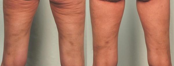 Tout ce qu'il faut savoir à propos de la liposuccion