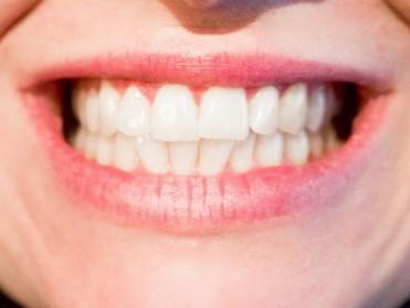 4 avantages d'un traitement d'orthodontie