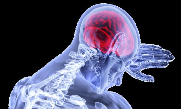 Paralysie cérébrale ou l'infirmité motrice cérébrale