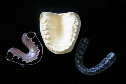 L'appareil dentaire invisible ou invisalign