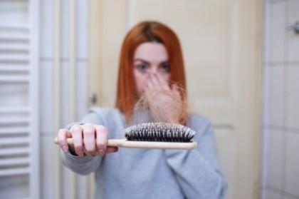Des choses à savoir avant de se faire greffer des cheveux