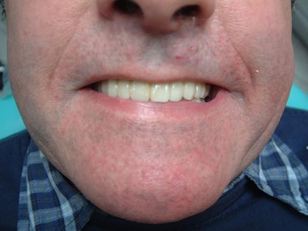 Avantages pour l'utilisation de l'implant dentaire