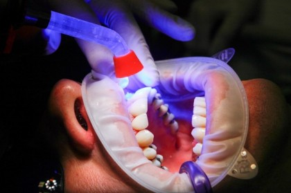 Présentation des différents soins dentaires