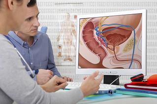 Les modalités du diagnostic du cancer de la prostate